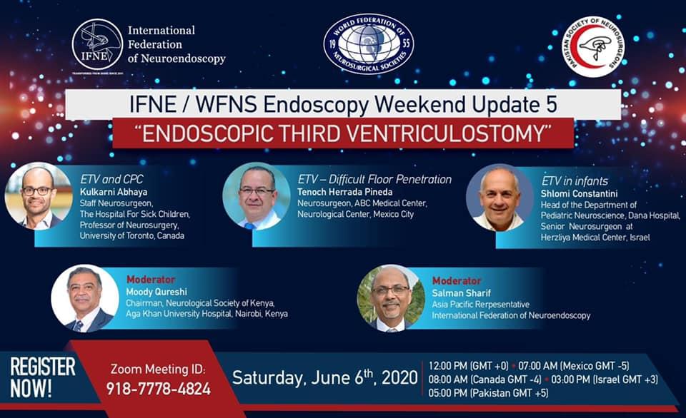 Endoscopic Third Ventriculostomy